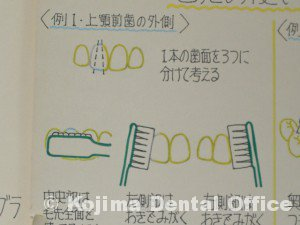上顎前歯の外側