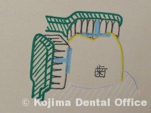 歯磨きの基本2