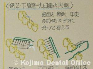 下顎大臼歯の内側