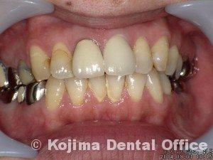 歯根の内部吸収10