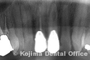 歯根の内部吸収2
