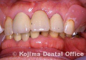 歯肉アーム部の破折2