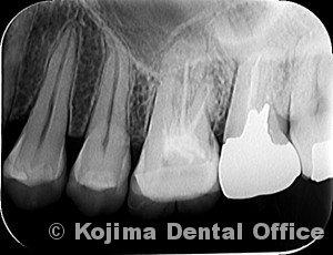 歯性上顎洞炎2