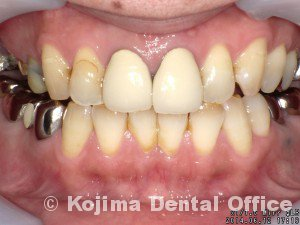 歯根の内部吸収1