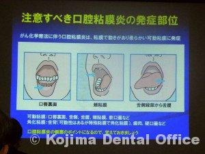 がん治療を支える歯科治療・口腔ケア5