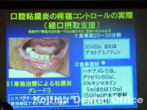 がん治療を支える歯科治療・口腔ケア8
