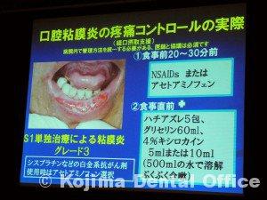 口腔粘膜炎