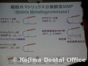 mmp3%e3%81%ab%e3%82%88%e3%82%8b%e6%ad%af%e9%ab%84%e5%86%8d%e7%94%9f%ef%bc%92