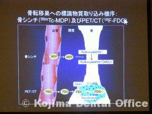 画像診断機器の進化2