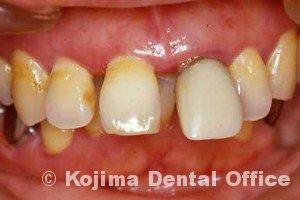 歯周治療001