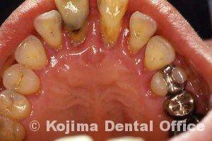 歯周治療002