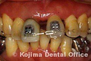 歯周治療003