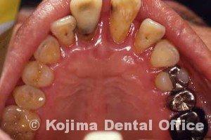 歯周治療004