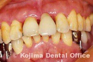 歯周治療005