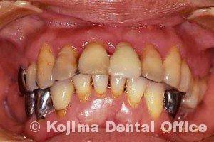 歯周治療007