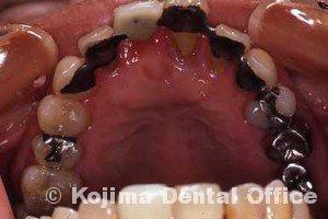 歯周治療008