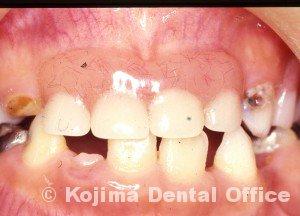 62.8.25.乳歯義歯